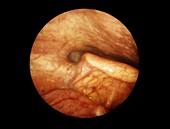 Epiglottis during swallowing