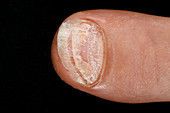 Fingernail psoriasis