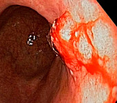 Stomach cancer,endoscope view