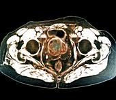 Benign prostatic hyperplasia,MRI