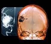 Brain blood vessel malformation,CT scan