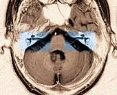 Auditory system,MRI