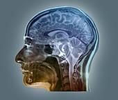 Brain anatomy,MRI