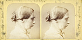 19th Century stereoscopic medical images
