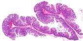 Colon polyps,light micrograph