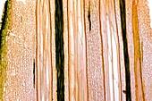 Fern (Pteridium aquilium) rhizome