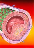 Atherosclerosis,illustration