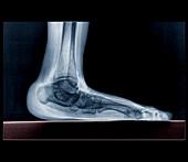Flat foot,X-ray