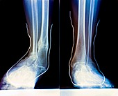 Flat feet with supports,X-ray