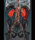 Aortic atheromas,3D CT scan