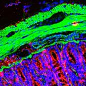 Small intestine,light micrograph
