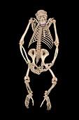 Chimpanzee skeleton,CT scan