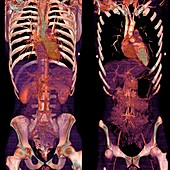 Chest and abdomen,CT scans