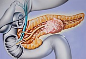 Pancreatic cancer,illustration