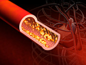 Atherosclerosis,illustration