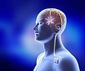 Deep brain stimulation,artwork