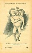 Conjoined twins,illustration