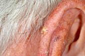 Solar keratosis of the ear