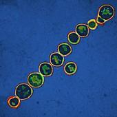 Streptococcus pyogenes bacteria,TEM