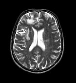 Progressive leukoencephalopathy,CT scan
