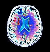Progressive leukoencephalopathy,CT scan