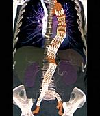 Abdominal aneurysm,CT scan