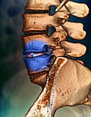 Spinal disc implant,3D CT scan