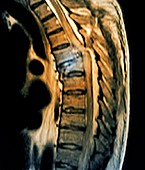 Spinal compression fracture,MRI