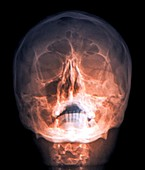 Fractured skull,X-ray