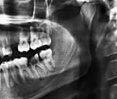 Tooth decay,X-ray
