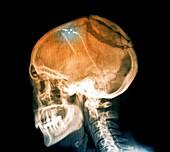 Ventricular shunt in brain tumour,X-ray