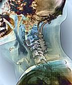 Fixed broken neck,X-ray