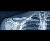 Normal shoulder,X-ray