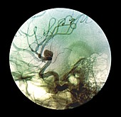 Brain aneurysm,X-ray