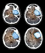 Brain tumour,CT scans