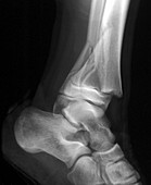 Fractured ankle,X-ray
