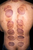 Cupping marks from cupping therapy