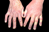 Vasculitis in scleroderma and MRSA