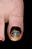 Haematoma in broken big toe