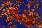 Haemoglobin crystals,light micrograph