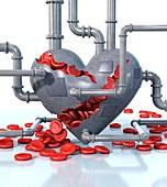 Cardiovascular disease,illustration