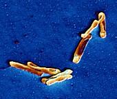 Clostridium difficile bacteria,TEM