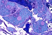 Human ovary,light micrograph