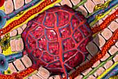 Liver Tumour,illustration