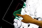 Digital forensic facial reconstruction