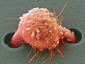 Breast cancer cell,SEM