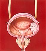 Bladder tumour,illustration