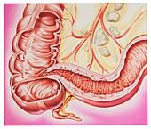 Crohn's disease,illustration