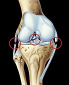 Knee ligament injuries,illustration