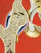 Hip joint bony ankylosis,illustration
